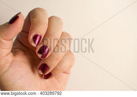 Damaged Female Manicure. Peeled Polish With Nails. Home Manicure Concept. Home Manicure In Quarantin