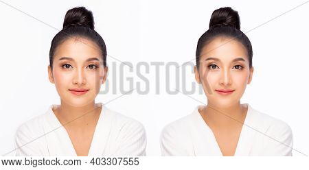 Compare Faces Before And After When Beauty Woman Get Cosmetic Surgery And Plastic Surgery Asian Girl
