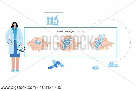 Vector Isolated Illustration Of Malignant And Benign Tumor In Healthy Tissue. Doctors In Laboratory.