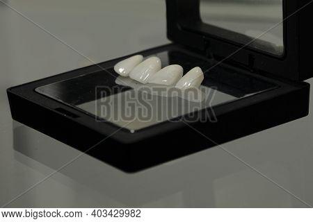 Ceramic Veneers For A Beautiful Smile Ceramic Veneers For A Beautiful Smile
