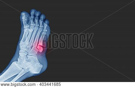 X-ray Foot Showing  Toe 5th Bone Fracture ( Base Of Metatarsal Fracture ) From Against The Wall. Hig