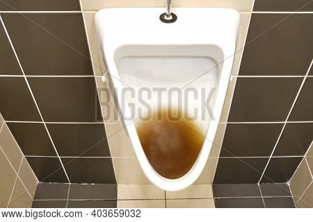 Dirty Clogged Urinal With Water In The Toilet Of A Restaurant. Disinfection And Hygiene In Toilets O