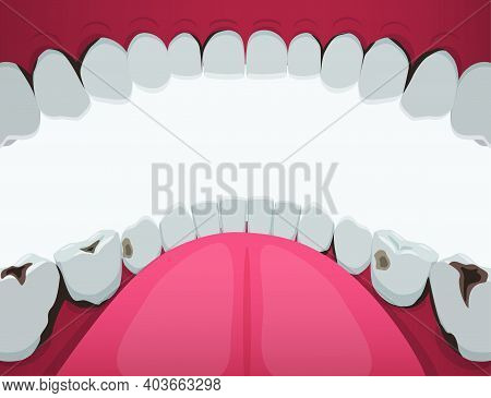 Teeth Damaged By Caries Oral Cavity Clipart