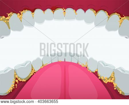 Oral Cavity With Tartar Clipart. Yellow Problematic