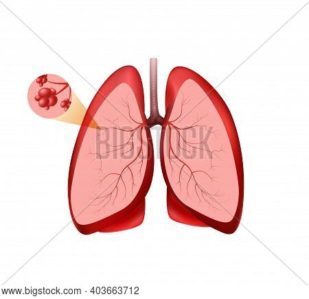 Location Pulmonary Alveoli Clipart. Pink Lungs With