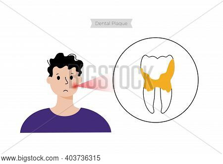 Tartar, Plaque, Toothache Disease. Child In Dental Clinic. Dentist, Stomatology, Tooth Anatomy Poste