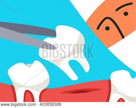 The Dentist Holding The Extracted Tooth In A Forceps. Prevention Of Oral Cavity Treatment.