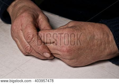 Senior Woman's Folded Hands Lie On The Table. Wrinkles On The Hands. Loneliness Of The Elderly.