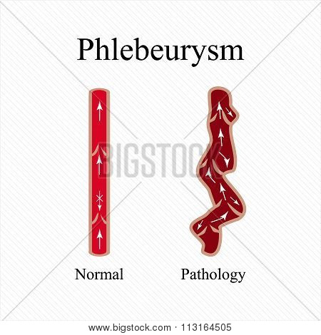 Phlebeurysm. Varicose veins. Venous disease. Infographics. Vector illustration