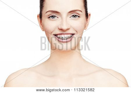 Happy Beautiful Girl With Braces