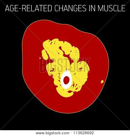 Age-related Changes In Muscle
