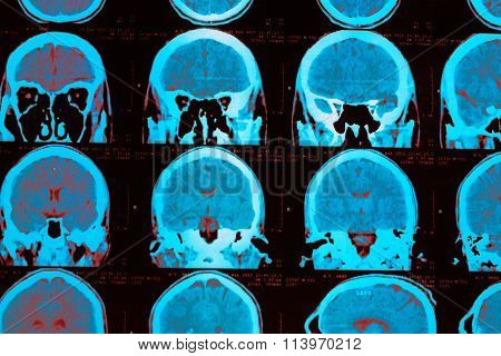 CT scan of the head