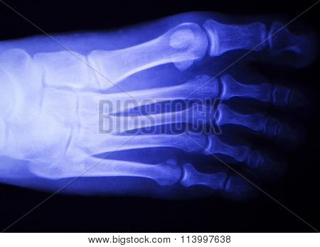 Foot and toes injury x-ray scan orthopedics and Traumatology radiology test results photo. poster