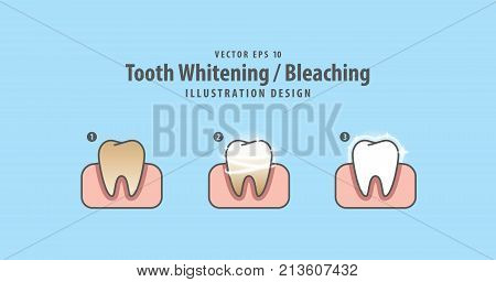 Step Of Single Tooth Whitening-bleaching And Human Gum Illustration Vector On Blue Background. Denta