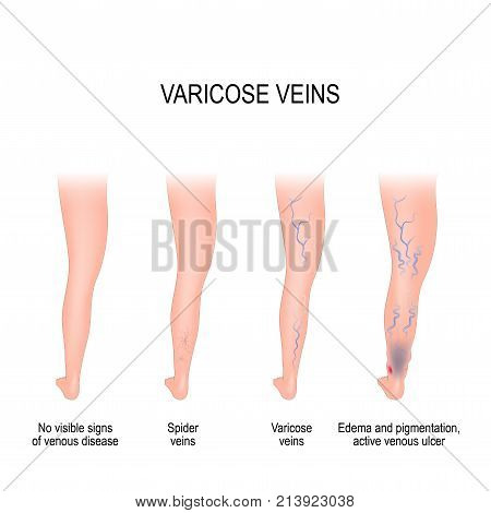 Stages of varicose: from no visible signs of venous disease to spider veins edema pigmentation and active venous ulcer. Normal and varicose veins. Vector diagram