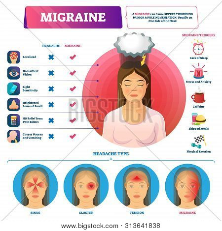 Migraine Vector Illustration. Labeled Abdominal Headache Triggers And Types Scheme. Visualized Sinus