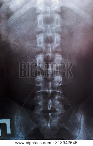 X-ray Of The Lumbar Spine, Spine On X-ray