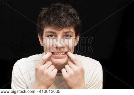 A Boy With Braces On His Teeth On A Black Background. He Opens His Mouth With His Fingers So That It