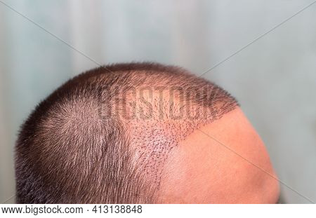Top View Of A Man's Head With Hair Transplant Surgery With A Receding Hair Line. -  After Bald Head