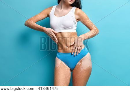 Studio Shot Of Faceles Woman Demonstrates Pale Vitiligo Patches On Skin Wears Cropped Top And Pantie