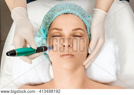 Medical, Cosmetological Procedure For Cleaning The Skin, Cleaning The Pores With A Special Tool On T