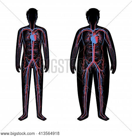Human Arterial And Venous Circulatory System In Obese Male Body. Blood Vessels Diagram In Overweight