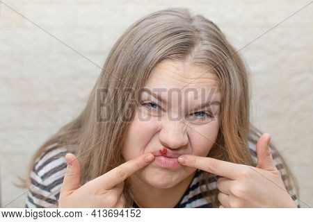 Human Papilloma Virus Lips Girl. Young Woman With Herpis Virus On Lip, Touching Her Lip With Her Fin