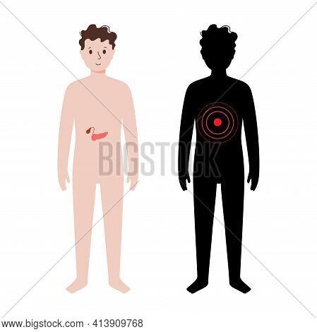 Pain Or Inflammation In Pancreas. Kid Anatomy Poster. Diabetes, Ache In Children Human Body. Interna