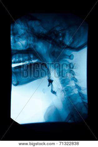 The Image Of X-ray Upper Gastrointestinal (ugi), Esophagram.