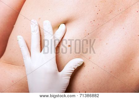 Skin Examination Of Moles