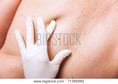 Skin Examination Of Moles