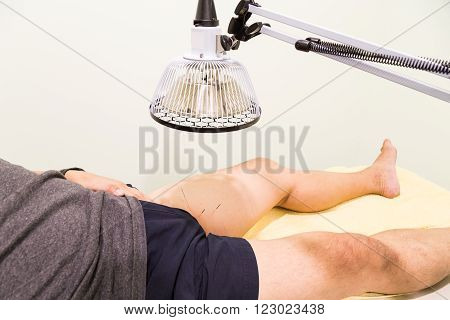 Acupuncture patient being treated with needles on thigh area and infrared heat lamp