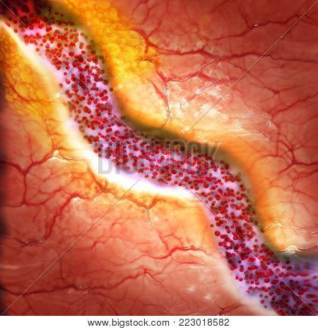Cholesterol plaque in blood vessel, 3d illustration