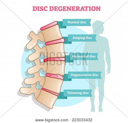 Disc degeneration flat illustration vector diagram with condition examlpes - bulging, hernoated, degenerative and thinning disc. Educational medical information.