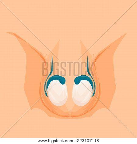 Vasectomy. Male organs, reproductive anatomy. Testicles Vector cartoon illustration