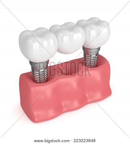 3D Render Of Implants With Dental Bridge