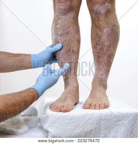 The dermatologist with his hands protected by gloves treats with the cream the inflammation in the legs of an adult man suffering from psoriasis