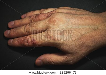Hand dermatitis. Hand eczema closed on black background