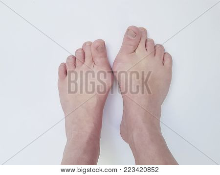 Hallux valgus, legs isolated on white, aching joints, heredity