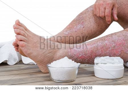 Psoriasis is a chronic inflammatory disease of the skin. Treatment of psoriasis in the clinic with medicines and relaxation
