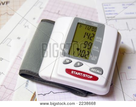 Closeup of a blood pressure measuring device on top of ECG papers poster