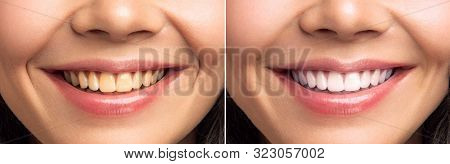 Close-up Of Smiling Woman Teeth Before And After Whitening