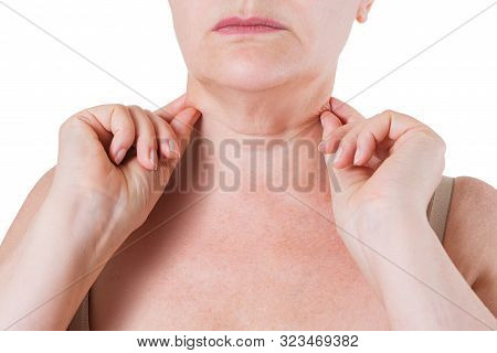 Flabby Skin On The Neck Of An Elderly Woman Isolated On White Background