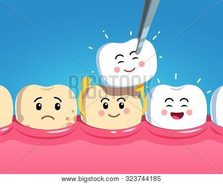 Funny Cartoon Teeth Characters On Gum And Veneer