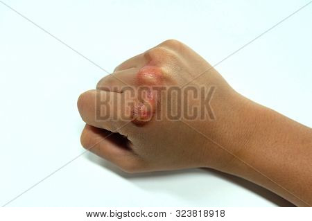 Scalded hand of woman with injury by boiling water burn. After healing 5 days. poster