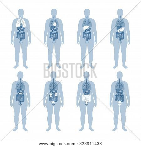 Vector Isolated Illustration Of Human Internal Organs In Obese Male Body. Stomach, Liver, Intestine,