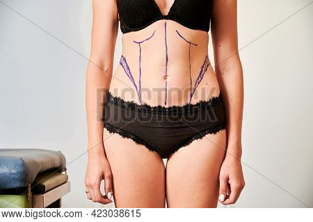 Horizontal Snapshot Of Young Woman Patient In Black Underwear Demonstrating Results Of Preoperative