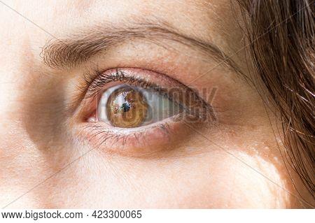 Human Eye With Lens Close-up Macro. Ophthalmology, Correction Of Myopia Or Hyperopia.