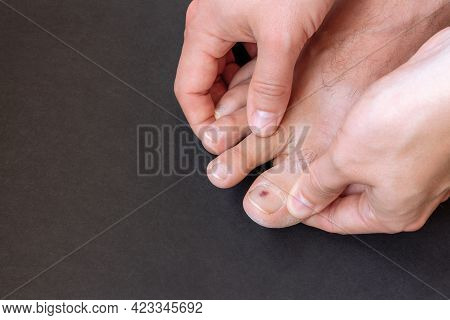 Small Bruise On Man Toenail On Black Background Close-up. Young Male Toe Injury After Running In Tig
