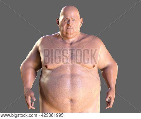 Obese Man, 3d Illustration. Concept Of Obesity, Behavioral Problem, Psychiatric Condition, Binge Eat